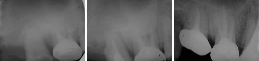 歯科医院 歯医者 岸和田市/歯の移植